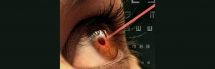 New surgery could end the need for reading glasses